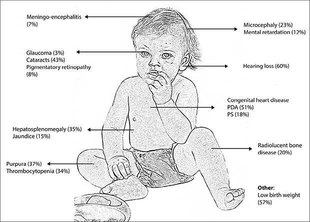 congenital rubella syndrome adults