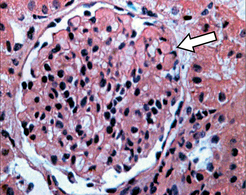 steroid resistant nephrotic syndrome fsgs