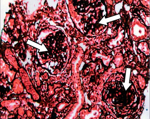 steroid resistant minimal change disease